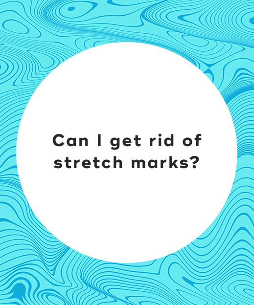 3-Can I get rid of stretch marks_