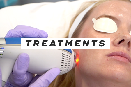 5-Try professional treatments