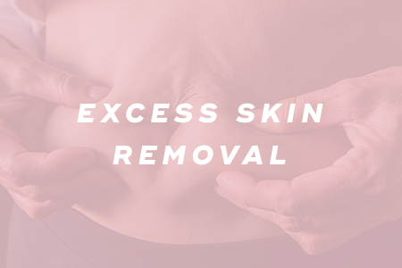 5. Excess skin removal