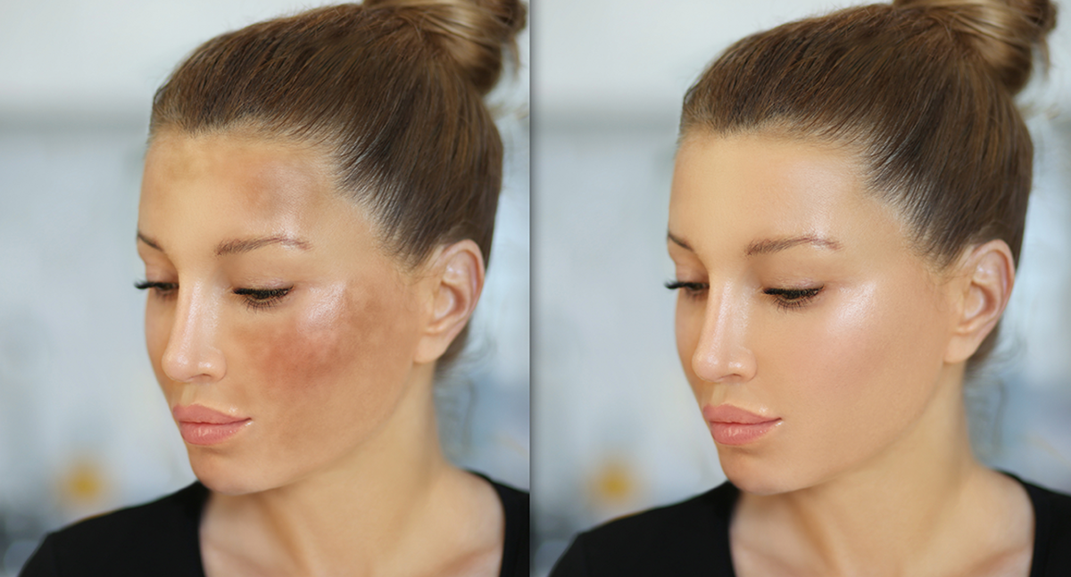 All You Need to Know About Treating Melasma