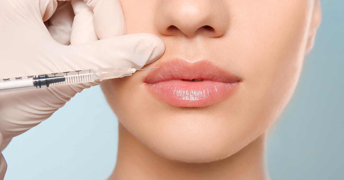 All Your Burning Questions About Lip Fillers Answered