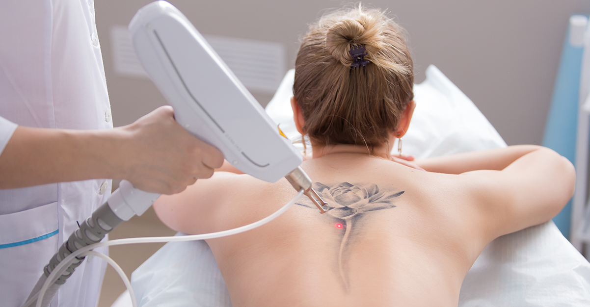 All Your Laser Tattoo Removal Questions Answered