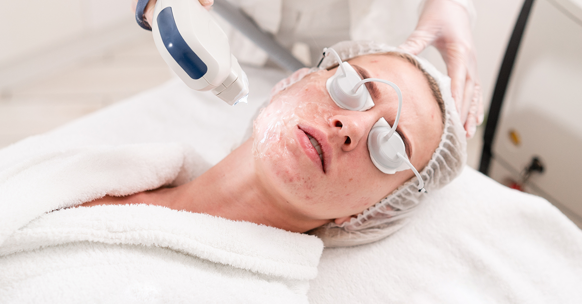 What Happens When You Get IPL Treatments for Acne Scars