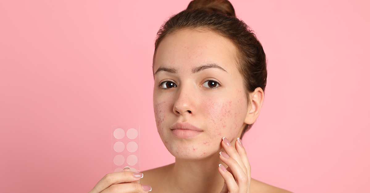 Here's Why Hydrocolloid Patches are Your New Best Friend
