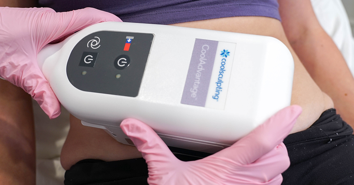 Should You Get CoolSculpting Before or After the Holidays?
