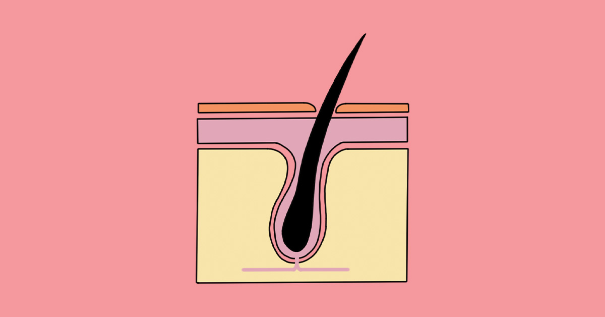 This is the Journey of a Hair Follicle During Laser Hair Removal
