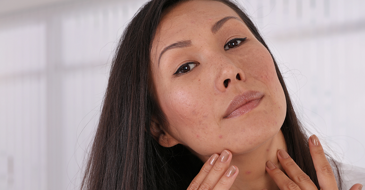 Which Laser Treatments are Best for Acne?